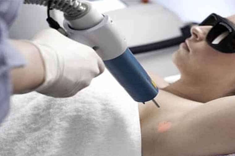 Điều trị hôi nách bằng laser là 1 biện pháp hiện đai và hiệu quả