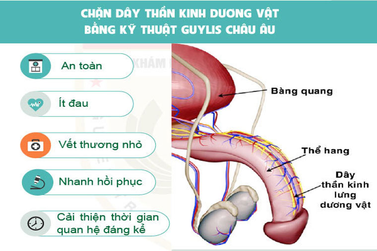Mô phỏng vị trí dây thần kinh lưng dương vật