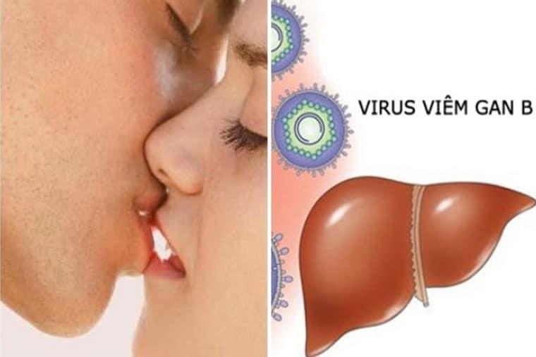 Quan hệ bằng miệng làm tăng nguy cơ mắc viêm gan B