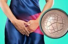 Viêm nhiễm phụ khoa là nhân gây ra khô âm đạo cho chị em