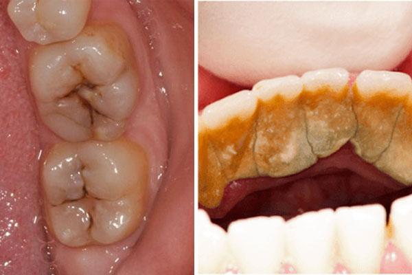 Đôi khi hôi miệng là do bạn bị sâu răng hoặc cao răng nhiều