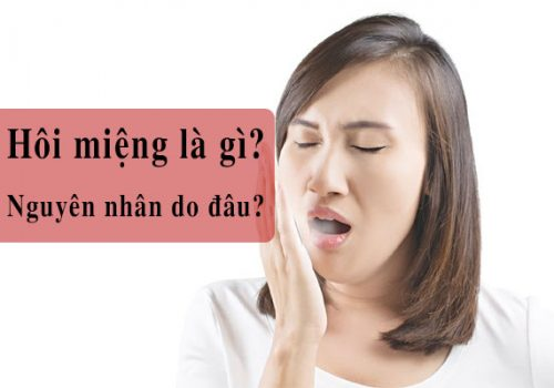Nguyên nhân gây ra bệnh hôi miệng là gì