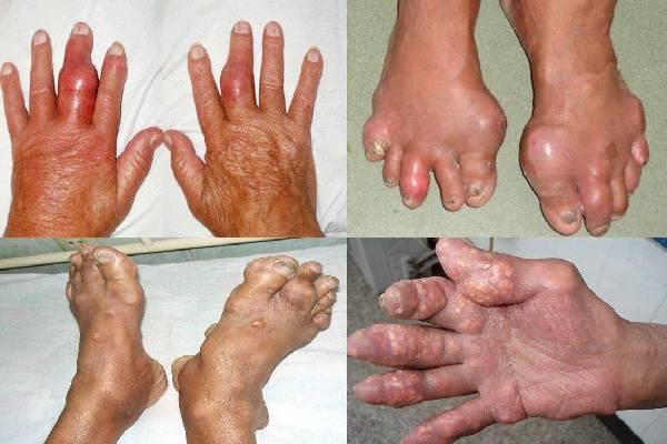 Gout ảnh hưởng lớn tới sức khỏe người bệnh