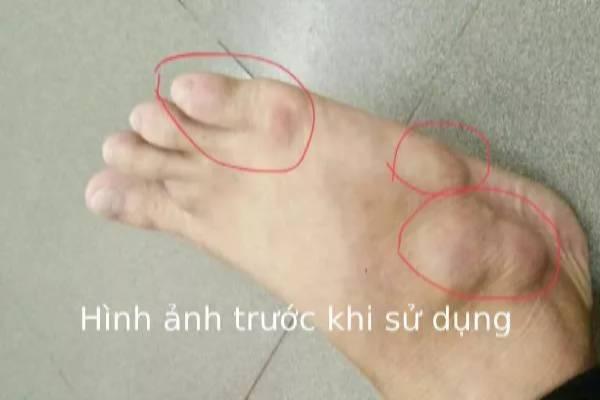 Bệnh nhân trước khi sử dụng cao gắm trị gout