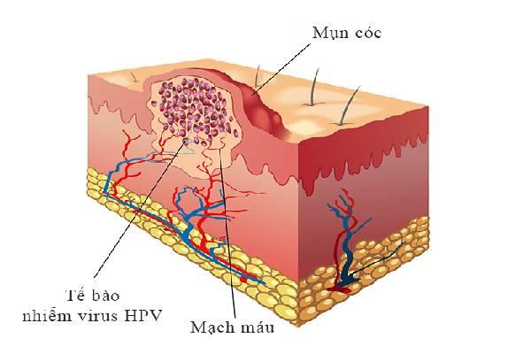 Biểu bì biến dạng do virus HPV