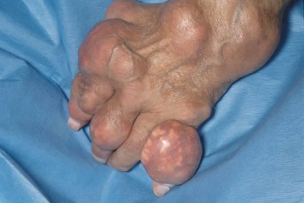 Bàn chân bệnh nhân Gout