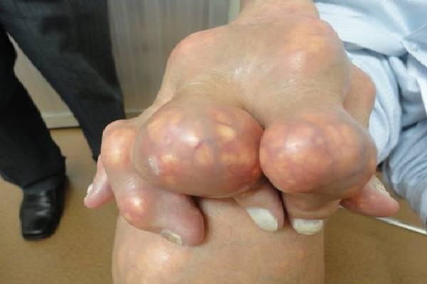Cao Gắm điều trị Gout -XK hiệu quả