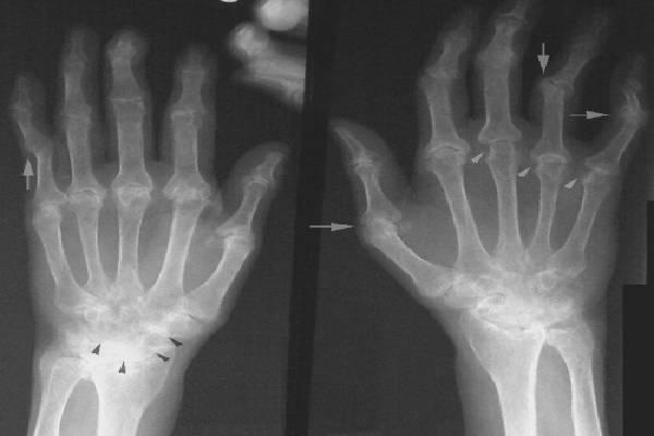 Ảnh chụp X Quang bàn tay bị Gout