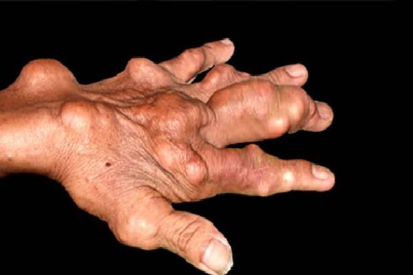 Bàn tay bệnh nhân Gout