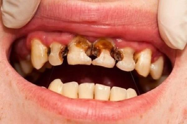 Bệnh sâu răng ở trẻ