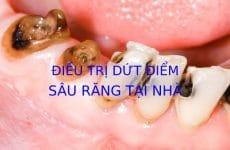 Điều trị dứt điểm sâu răng tại nhà