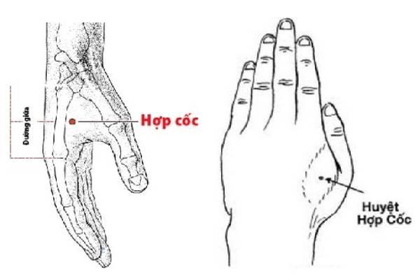 Đông y điều trị viêm tai giữa bằng huyệt hợp cốc