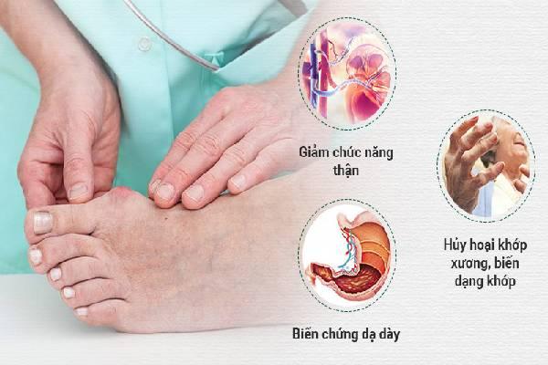Gout gây ra nhiều biến chứng nguy hiểm