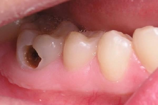 Hình ảnh bệnh sâu răng