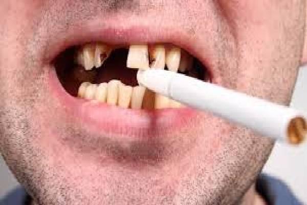 Hút thuốc lá là một trong những nguyên nhân gây nên viêm nha chu