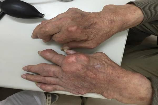 Bàn tay bị bệnh Gout