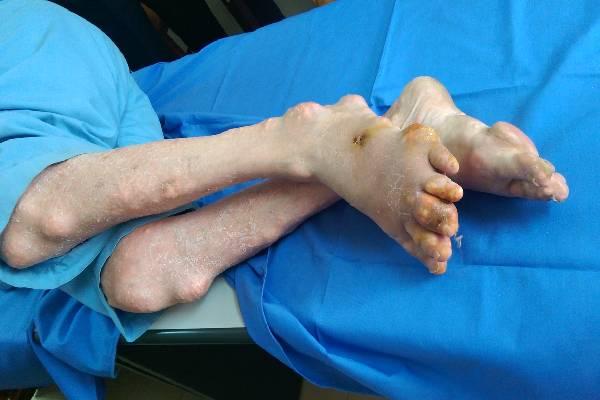 Một bệnh nhân bị gout hành hạ