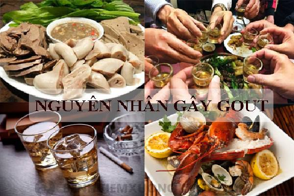 Rượu bia là tác nhân lớn gây Gout