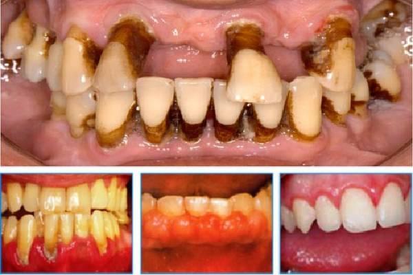 Sâu răng gây mất thẩm mỹ răng miệng