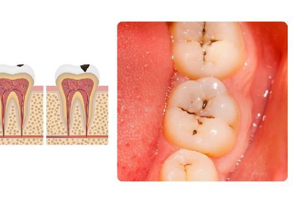Sâu răng mức độ 1