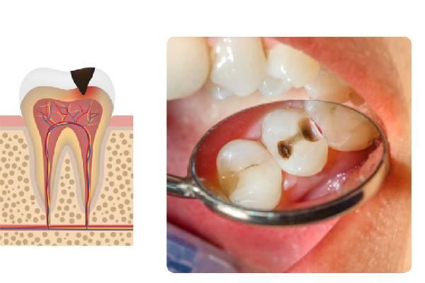 Sâu răng mức độ 2