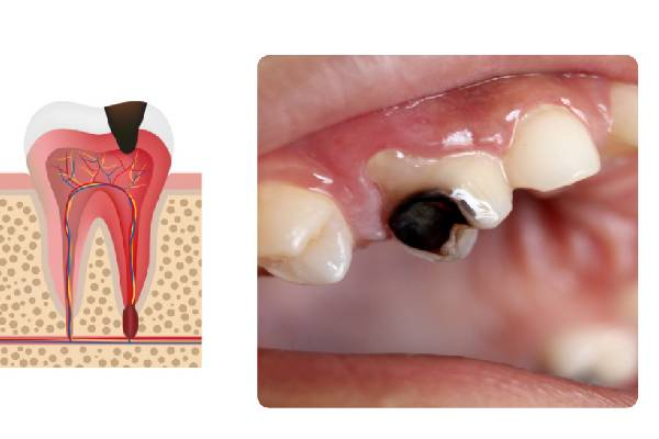 Sâu răng mức độ 3