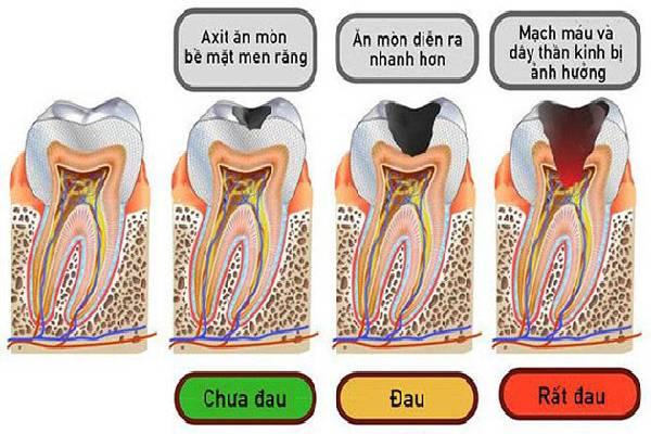 Sâu răng qua 4 giai đoạn
