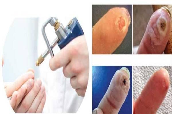 Sử dụng ni tơ lỏng điều trị mụn cóc