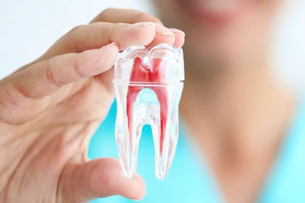 Trám răng lấy tủy - phương pháp điều trị sâu răng hiệu quả