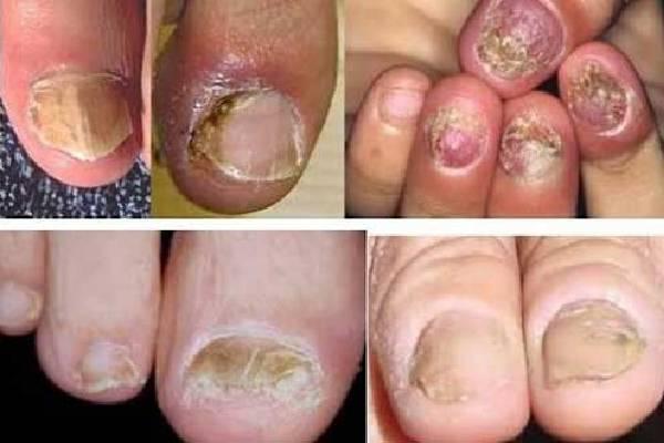 Biểu hiện của nấm móng chân