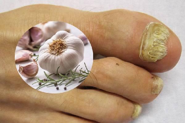 Chữa nấm móng chân bằng tỏi