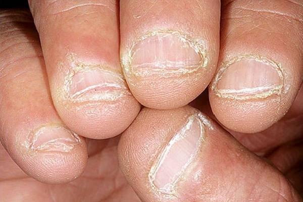 Dấu hiệu nhận biết nấm móng chân