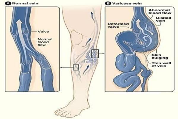 Trào ngược tĩnh mạch xảy ra khi có suy giãn tĩnh mạch