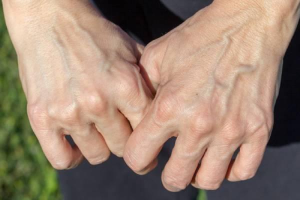 Người bị giãn tĩnh mạch sẽ xuất hiện các gân xanh ở tay