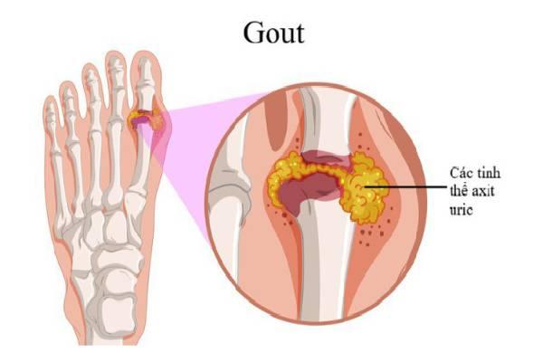 Các tinh thể urat lắng đọng tại khớp gây nên gout