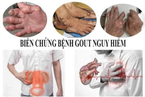 Gout gây nên nhiều biến chứng nguy hại tới người bệnh