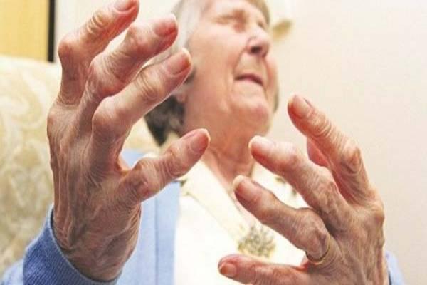 Đau khớp ngón tay chân là triệu chứng thường gặp nhất khi bị gout