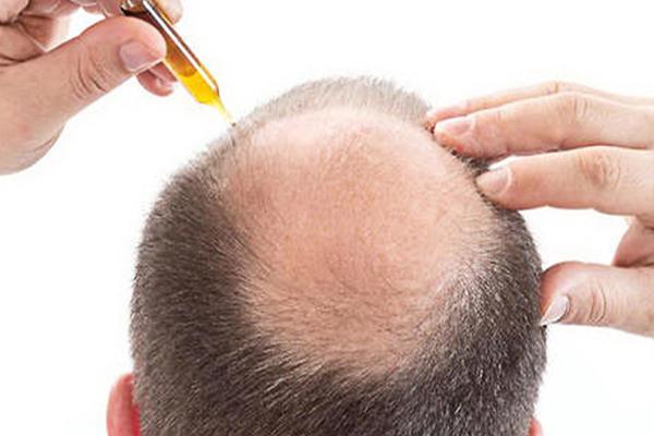 Thuốc trị nấm da đầu là gì