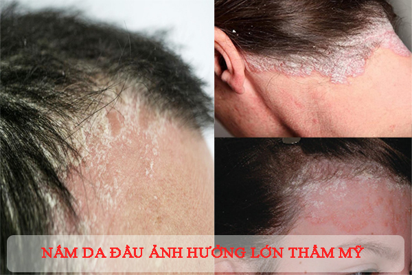 Nấm da đầu là nỗi ám ảnh khi mắc phải