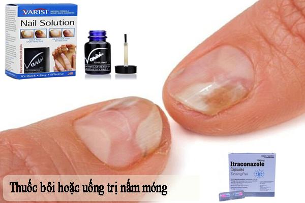 Sử dụng thuốc bôi hoặc uống để trị nấm móng hiệu quả