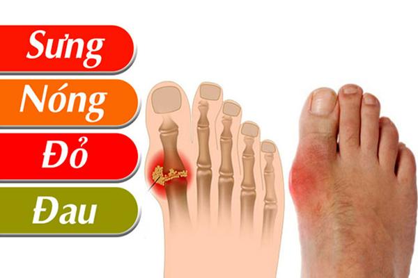 Các triệu chứng chủ yếu của bệnh gout