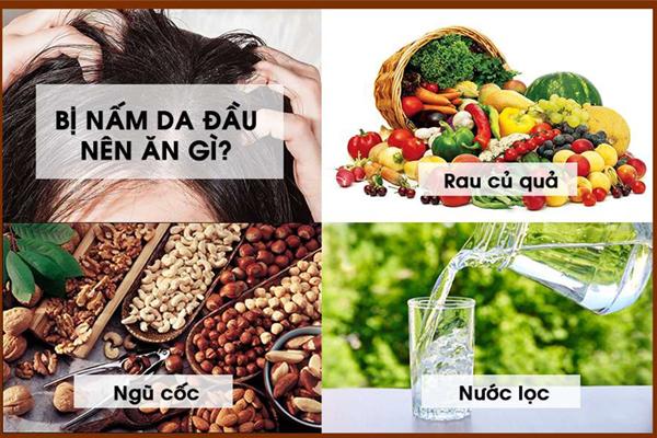 Những thực phẩm nên ăn khi bị nấm da đầu