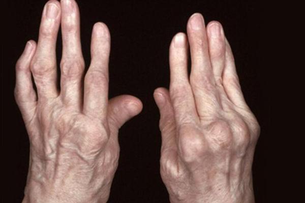 Biến dạng khớp là biến chứng nguy hiểm của gout