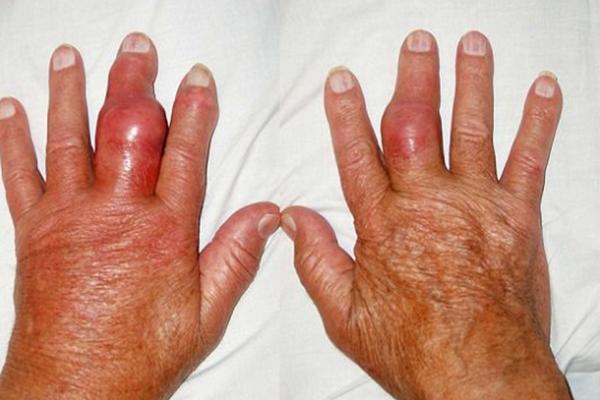 Các khớp bị sưng do bệnh viêm khớp