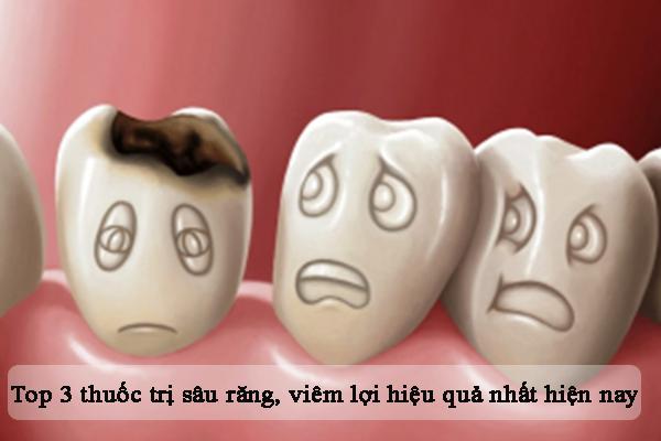 Top 3 thuốc trị sâu răng, viêm lợi tốt nhất hiện nay