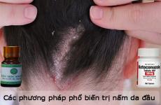 Các phương pháp phổ biến trị nấm da đầu hiện nay