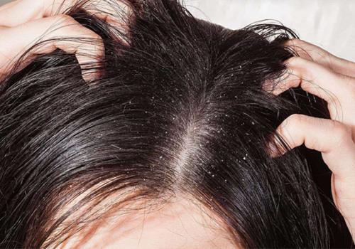 Gàu xuất hiện là biểu hiện của bệnh nấm da đầu