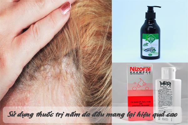 Sử dụng thuốc trị nấm da đầu mang đến hiệu quả điều trị cao