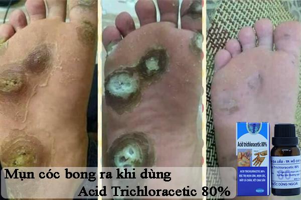 Hiệu quả của thuốc trị mụn cóc Acid Trichloracetic 80%