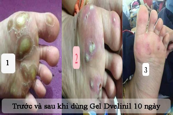 Trước và sau khi sử dụng Gel Dvelinil trị mụn cóc